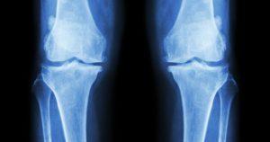 болезни костей человека